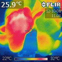 Thermal imaging helps to identify foot problems
