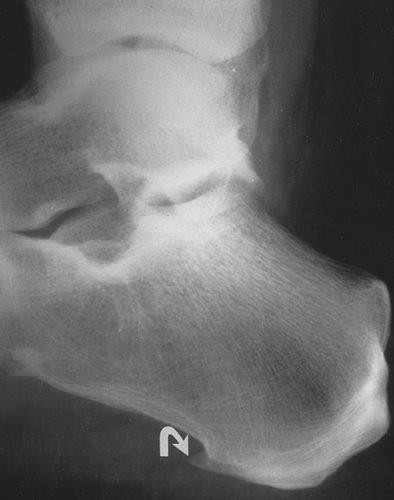X-ray showing heel spur, a common foot problem - foot heel pain