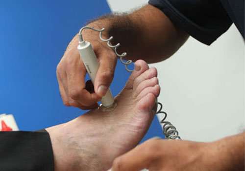 Diabetes and high risk foot care