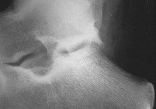 Heel Pain, Plantar Fasciitis and Heel Spur Syndrome